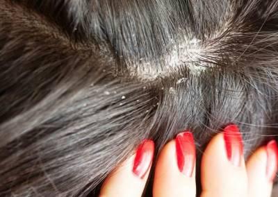 шелушение волос