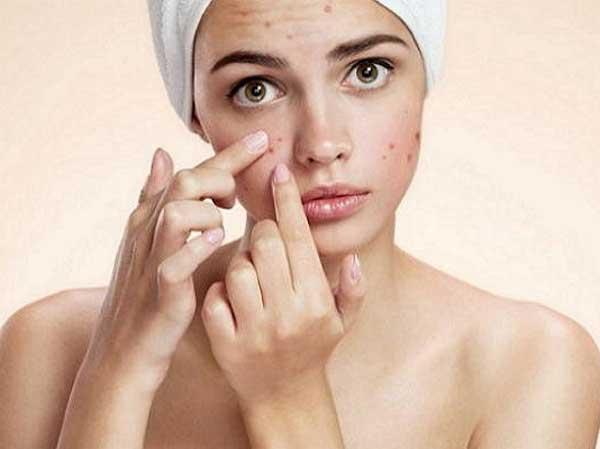 Угревая сыпь на лице и ее лечение
